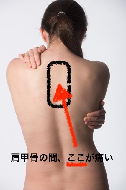 が 痛い 背中 産後