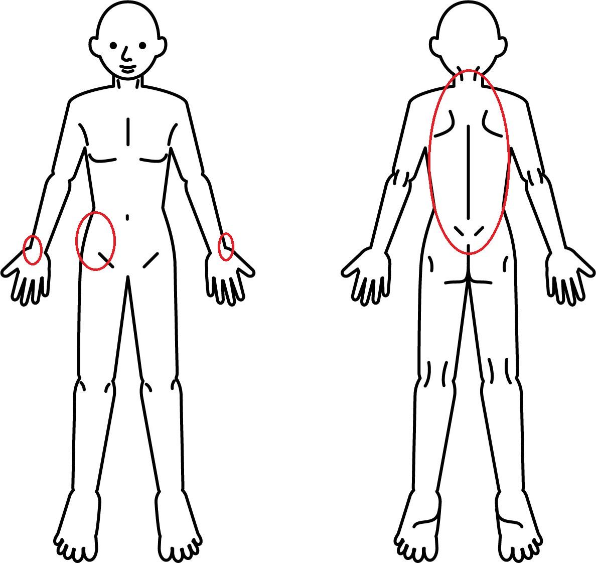 の にかけて 左 痛み から 肩 首